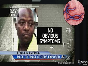 """""""El hombre en Dallas, que está luchando por su vida, es el único paciente que ha desarrollado..."""