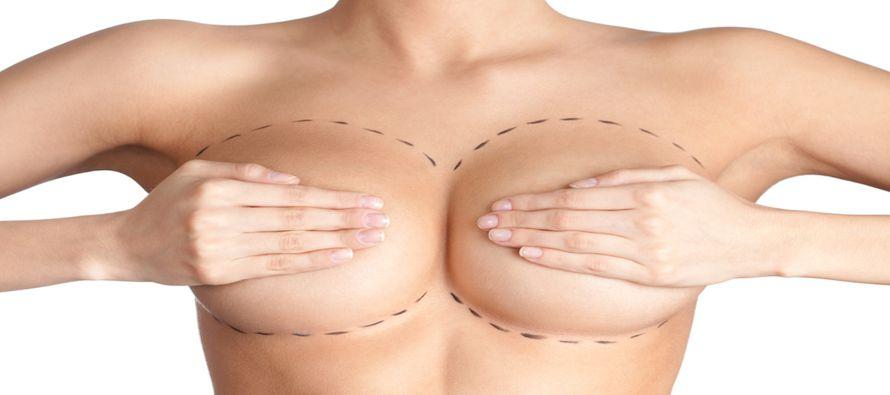 No todos los doctores saben cómo tratar los problemas con los implantes de senos, según comenta...