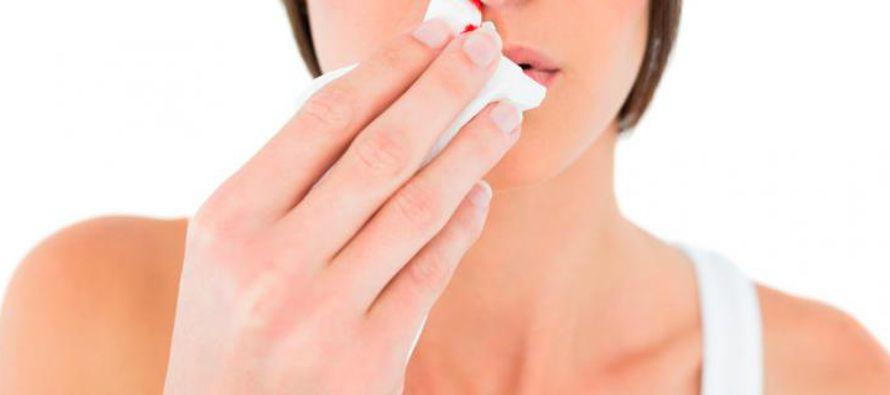 La hemorragia nasal  es causada debido a los cambios bruscos de temperatura a los que nos vemos...