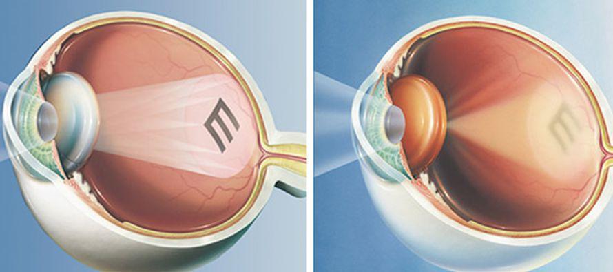 """""""Es muy liberador poder ver sin lentes"""", me dijo Quinn. """"Mi visión es..."""