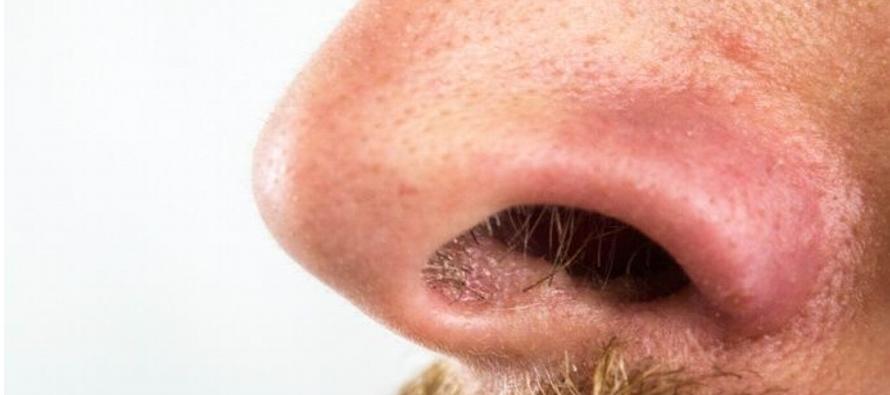 El cáncer de seno paranasal y de cavidad nasal es una enfermedad en la que se forman...