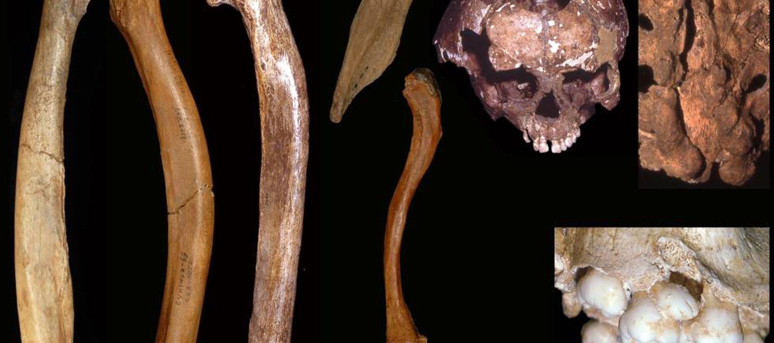 Los humanos ya cuidaban a sus discapacitados hace 200,000 años